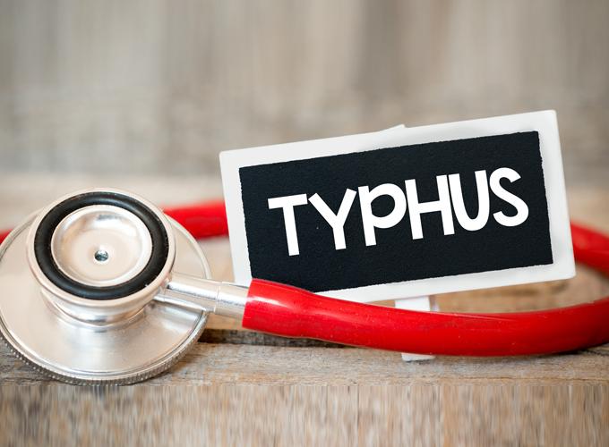 טיפוס-מוריני-–-murine-typhus